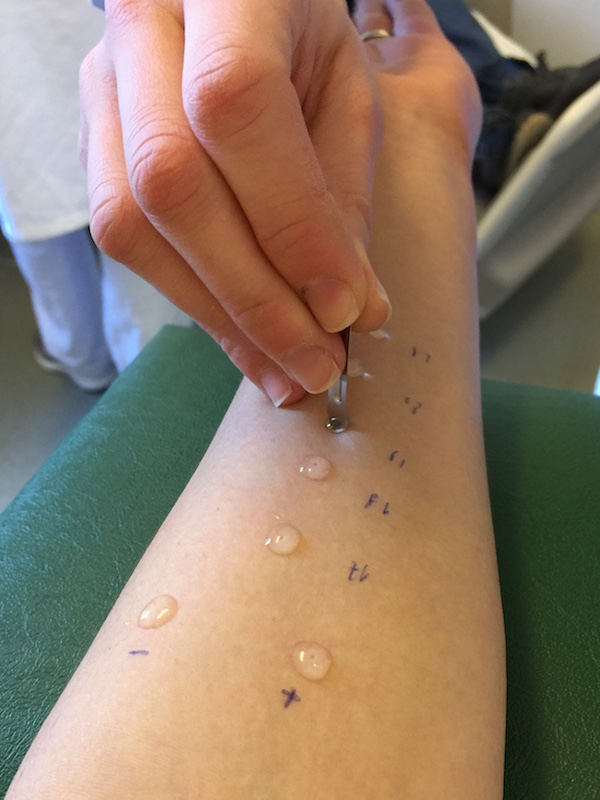 Photo allergy testing